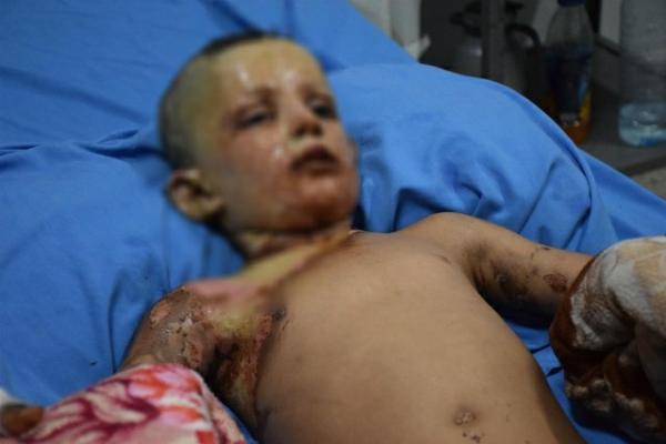 طبيب بمشفى الحسكة يعتقد أن جيش الاحتلال استخدم أسلحة محرمة