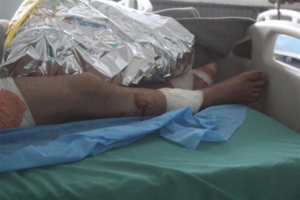 إصابة مدني بجروح إثر قصف الاحتلال التركي لقرية أم الكيف