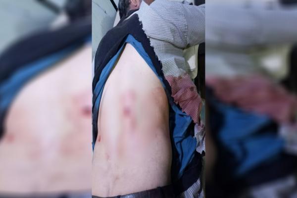 إصابة مدني وأضرار مادية بقصف الاحتلال التركي لمقاطعة الشهباء