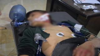 فقدان طفل وإصابة ثلاثة آخرين بانفجار لغم بالشهباء