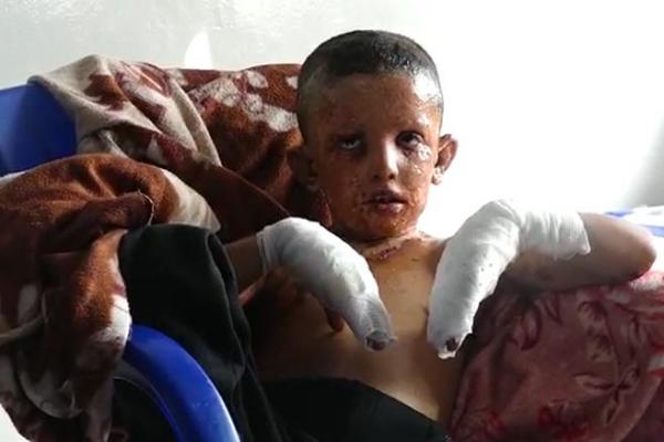 The wounded in al-Hasakah hospital: Turkey shelled us with phosphorus