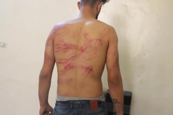 Two youths trying to cross into Turkey beaten by Gendarmes