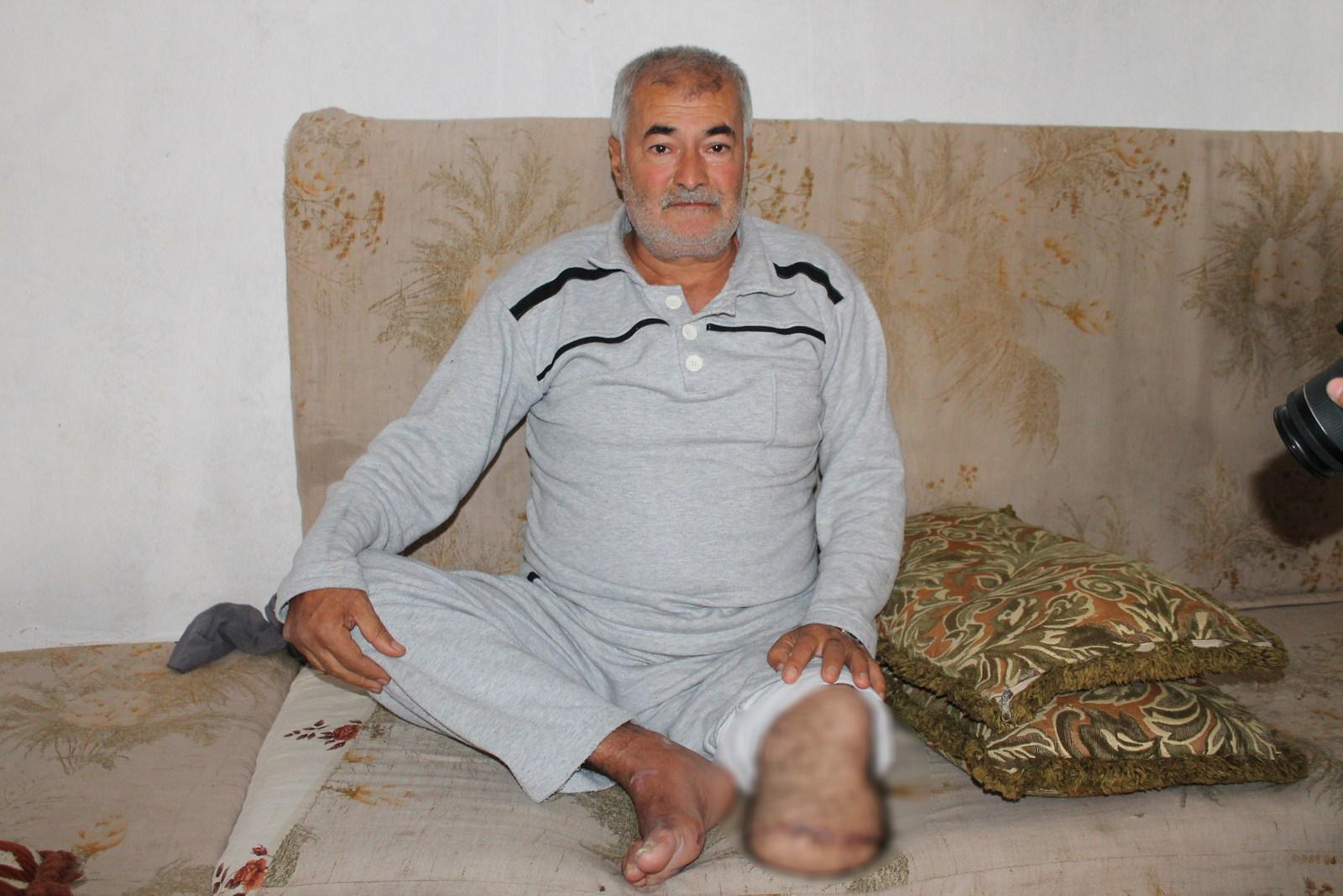 2,800 pacientes con diabetes en al-Shahba necesitan tratamiento