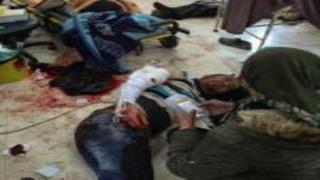 La escena de la masacre de Halabja se repite en la misma fecha en Afrin