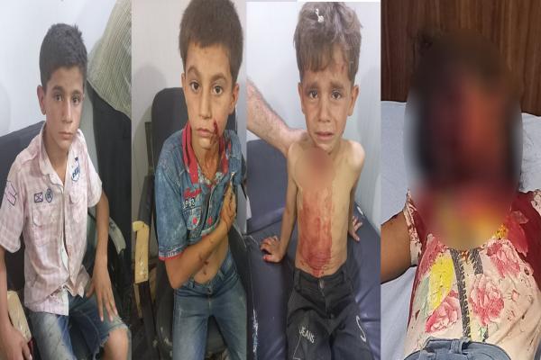 Şehba'daki patlamada yaralanan çocuklardan biri yaşamını yitirdi